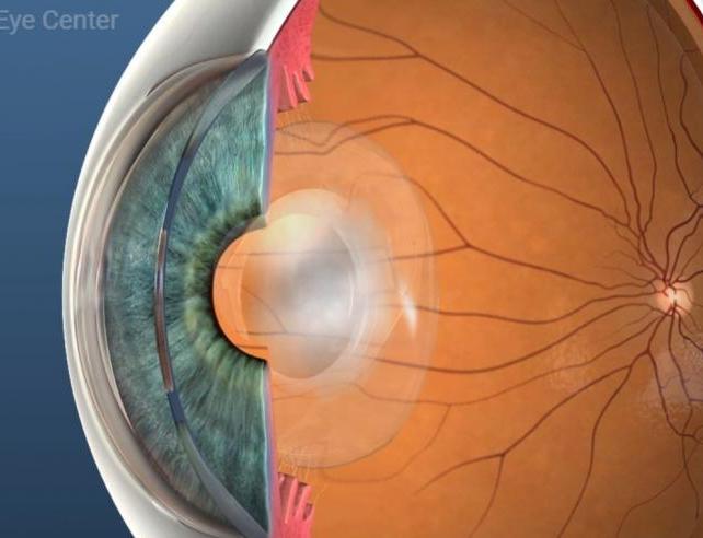 Лазерна капсулотомия при вторична катаракта