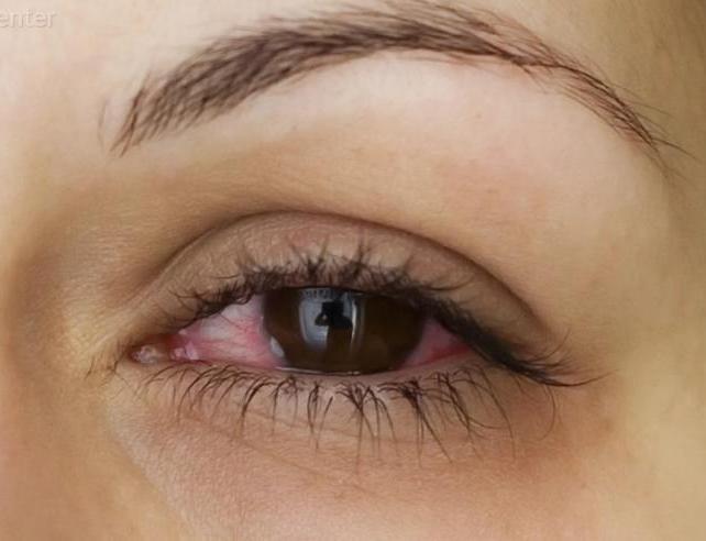Възпалителни заболявания на окото и придатъците му