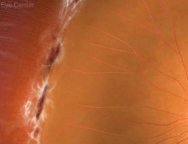 Лазертерапия при разкъсвания или периферни дегенерации на ретината